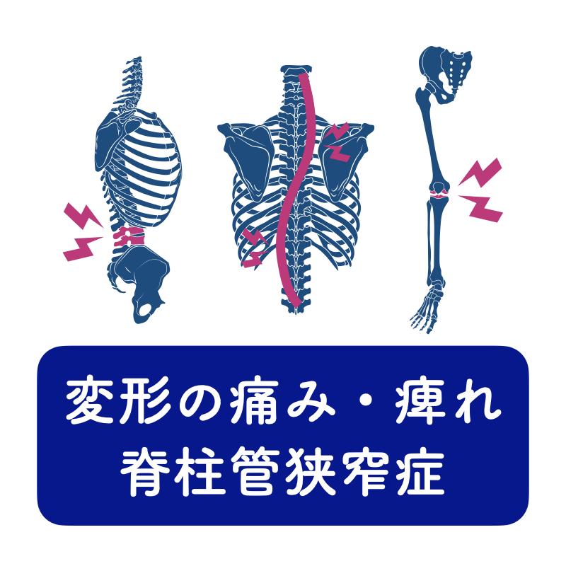 変形の痛み・痺れ脊柱管狭窄症